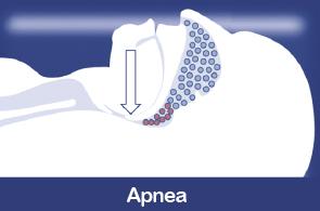 imagen-seccion-apnea